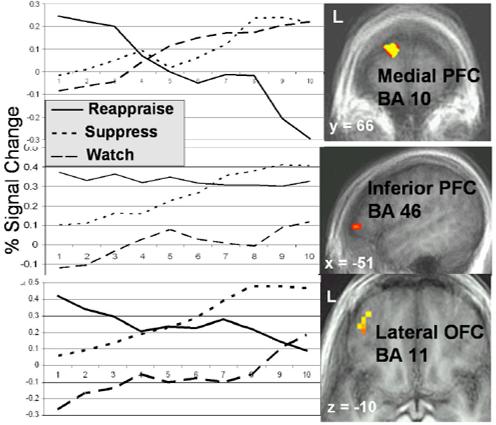 emotion-regulation-prefrontal
