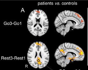 sustained attention vigilance fMRI