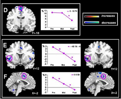 automaticity brain