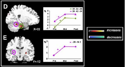 automaticity deep brain
