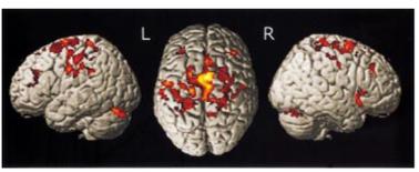 rehabilitation negative correlates