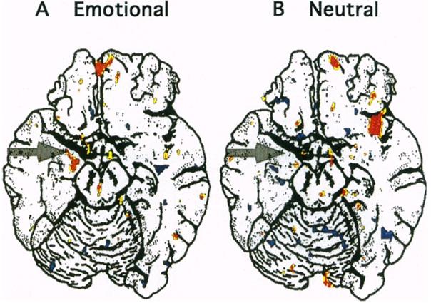 long term memory amygdala brain