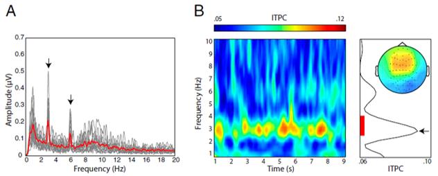 rhythm brain EEG
