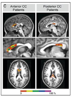 corpus callosum brain