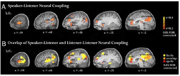 speech comprehension and production brain synchronization