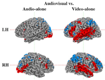 speech perception auditory and visual fMRI