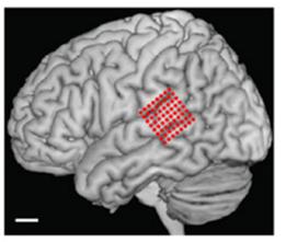 temporal cortex