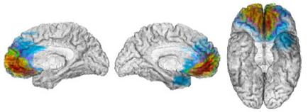 brain ventral medial frontal vortex