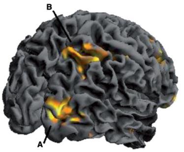 emotion decision making brain activation