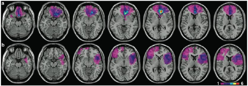 decision making prefrontal lesion
