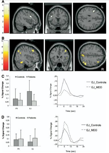 depression negative emotion prefrontal