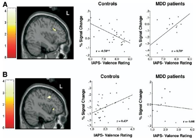 depression prefrontal brain negative emotion valence