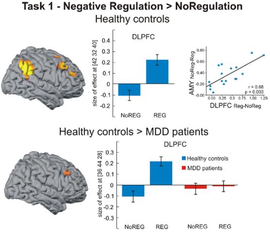 depression emotion control prefrontal brain