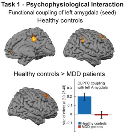depression emotion regulation prefrontal amygdala