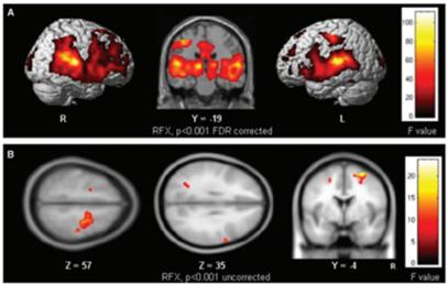 autism brain tone sensory sensitivity