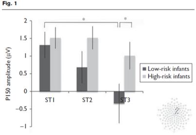 autism EEG tone habituation