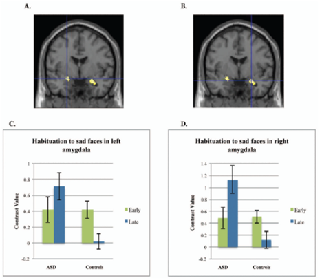 autism brain emotion amygdala sad faces