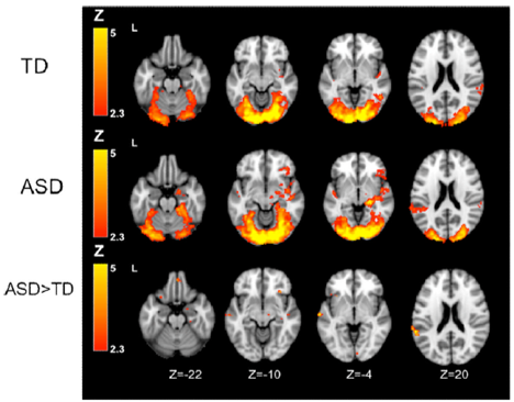 autism brain visual cortex sensory sensitivity