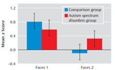 autism brain amygdala habituation
