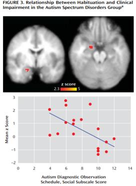 autism amygdala habituation severity