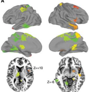 autism conversation brain connectivity
