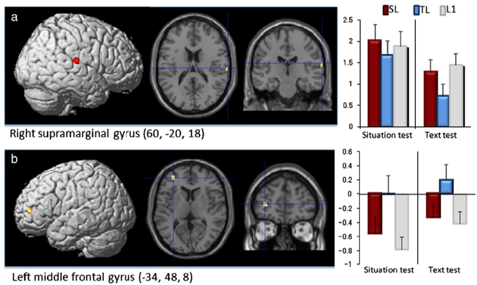 the difference of brain activations between text based learning and situation based learning