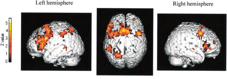 motor exercise imagination brain