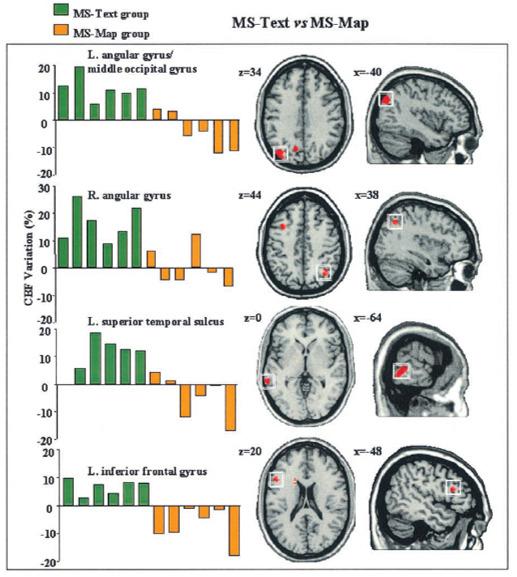 language sentence visual imagination brain