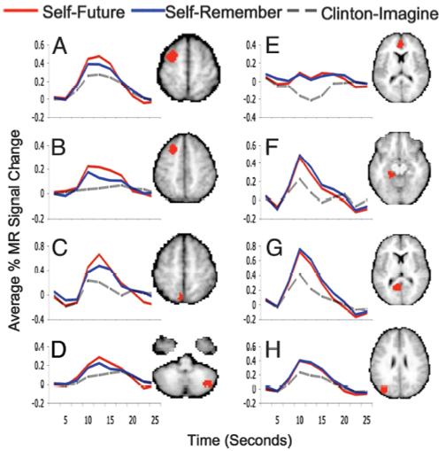 self and others episodic memory future thinkin imagination brain