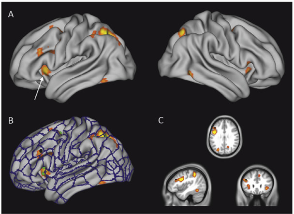 meta-analysis imagination brain