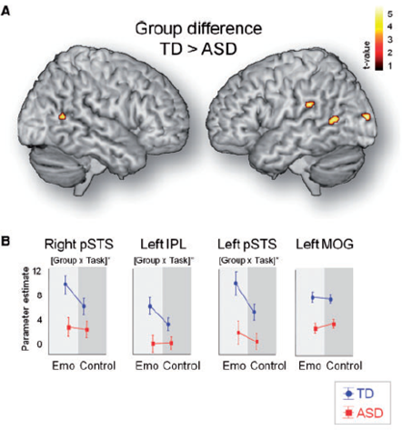 autism emotional biological motion recognition brain