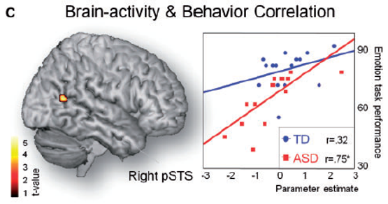 autism emotional biological motion recognition brain pSTS