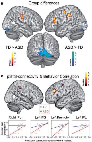 autism emotional biological motion recognition brain connectivity
