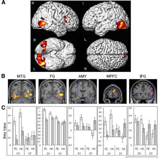 autism face emotion recognition brain