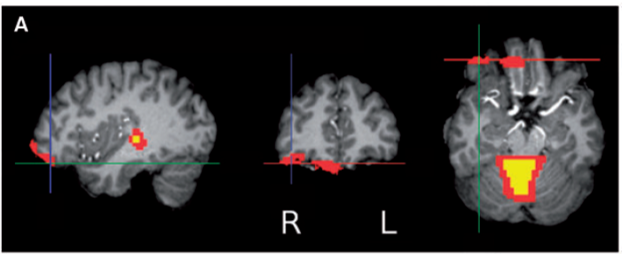 sex differences in brain structure and emotion regulation