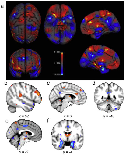 sex differences in brain structure by meta-analysis