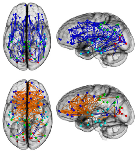 sex differences in brain connectivity